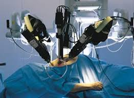 A robot performing surgery in the operating theatre